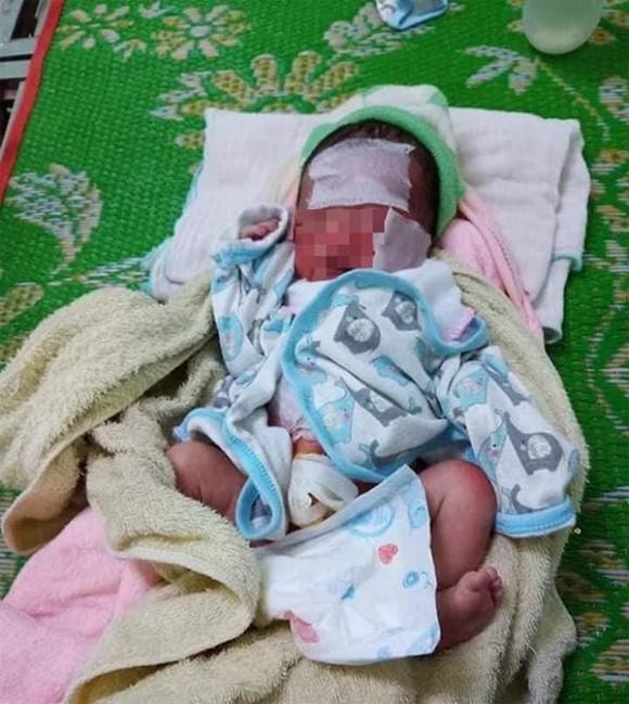 Bé sơ sinh còn nguyên dây rốn bị bỏ cả ngày trong rẫy bắp, nắng nóng cháy da