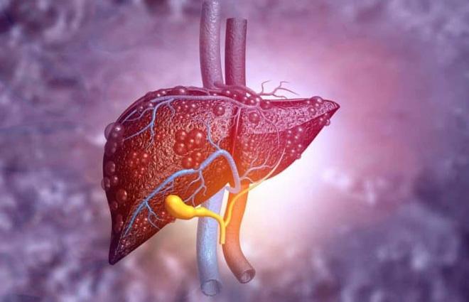 Chủ tịch Hội ung thư chỉ đích danh 2 vi rút, 1 vi khuẩn có thể gây ung thư, 2 loại rất phổ biến ở Việt Nam